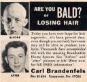 Método para no quedarte calvo o recuperar el pelo